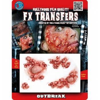 Transfert 3D pustules MM