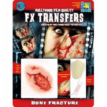 Kit transfert 3D fracture os