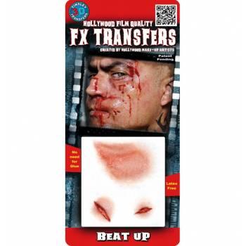 Transfert 3D blessures PM